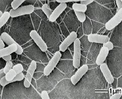 全既存薬が効かない「悪夢」のスーパー耐性菌、米国で初確認